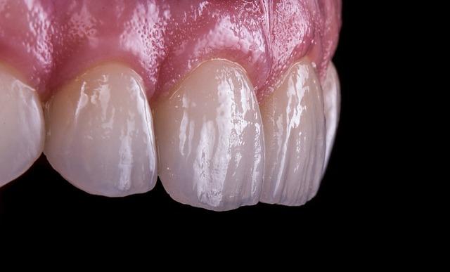 Detail pohledu na zuby